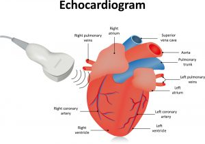 ecografie-inima